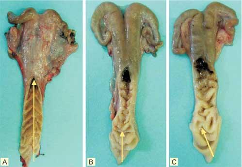 how to make artificial vagina